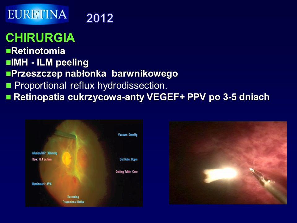 CHIRURGIA Retinotomia Retinotomia IMH - ILM peeling IMH - ILM peeling Przeszczep nabłonka barwnikowego Przeszczep nabłonka barwnikowego Proportional r