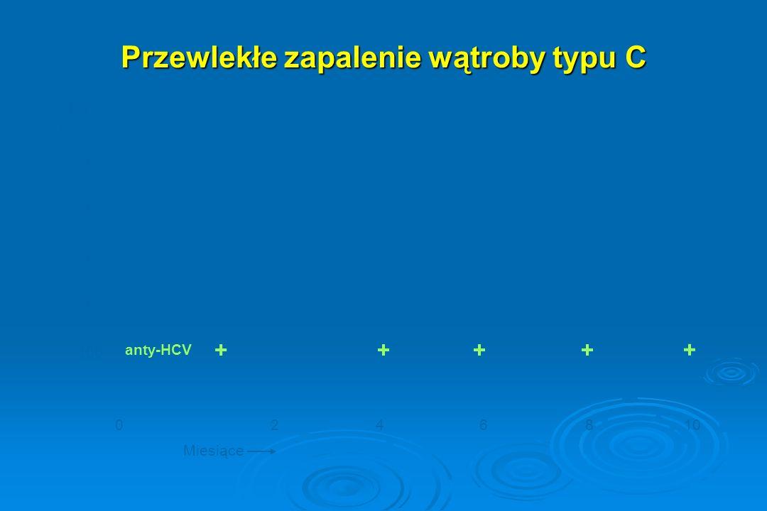 Przewlekłe zapalenie wątroby typu C 800 400 300 200 100 0246810 AIAT (IU/L) Miesiące anty-HCV ++++ +