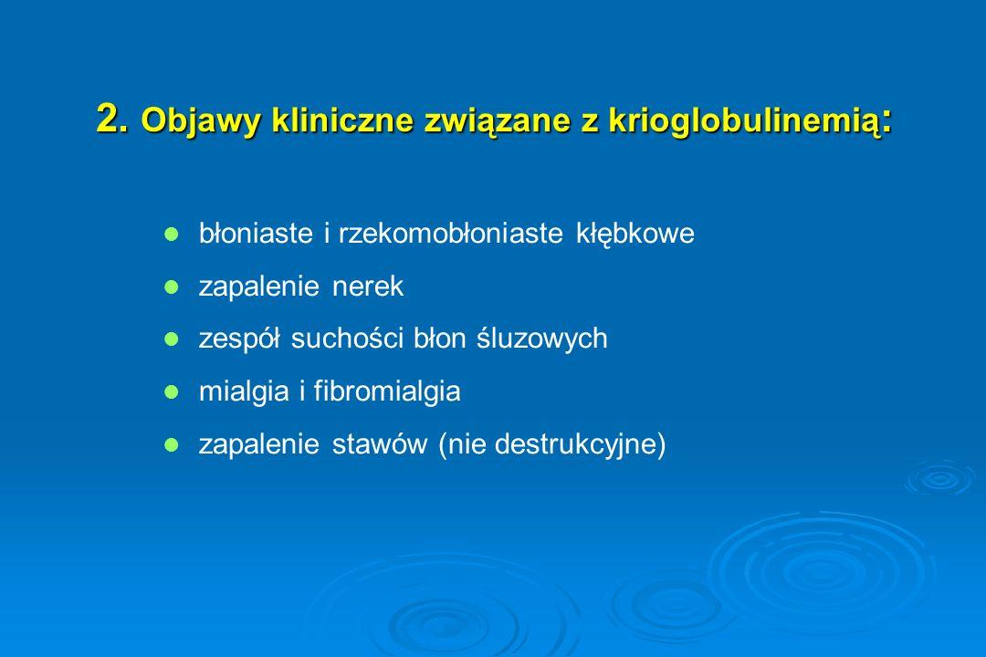 2. Objawy kliniczne związane z krioglobulinemią : błoniaste i rzekomobłoniaste kłębkowe zapalenie nerek zespół suchości błon śluzowych mialgia i fibro
