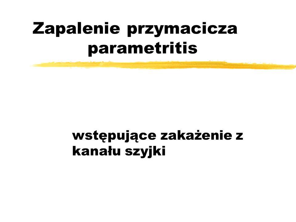 Leczenie zAntybiotykotarapia - 2 doby wlew dożylny, następnie leczenie doustne przez 14 dni zleki p-bólowe zuspakajające znasenne