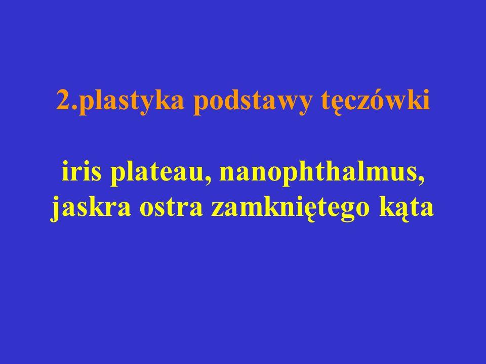 2.plastyka podstawy tęczówki iris plateau, nanophthalmus, jaskra ostra zamkniętego kąta