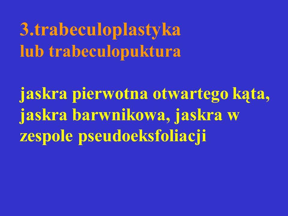 3.trabeculoplastyka lub trabeculopuktura jaskra pierwotna otwartego kąta, jaskra barwnikowa, jaskra w zespole pseudoeksfoliacji