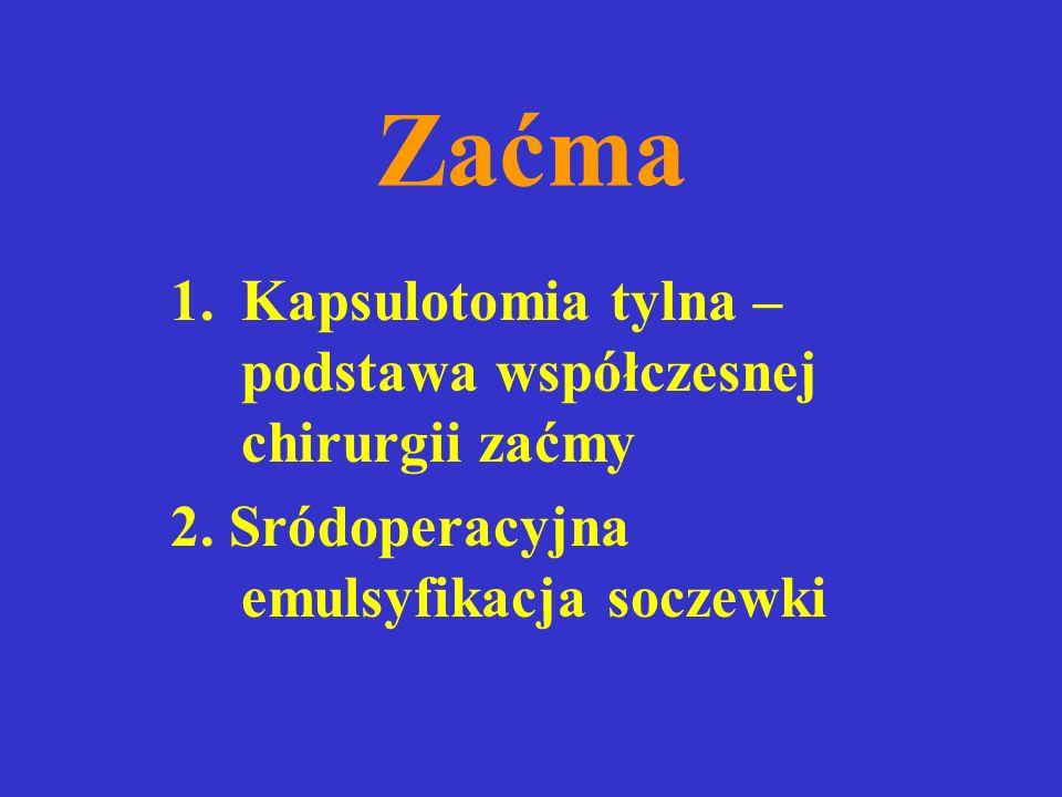 Zaćma 1.Kapsulotomia tylna – podstawa współczesnej chirurgii zaćmy 2.