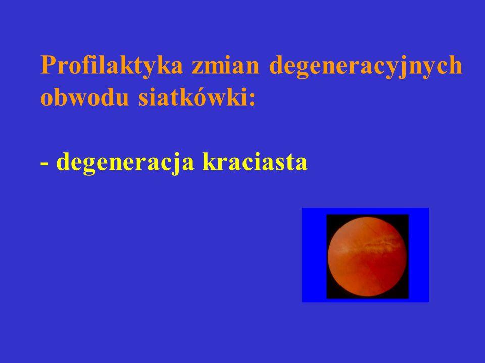 Profilaktyka zmian degeneracyjnych obwodu siatkówki: - degeneracja kraciasta