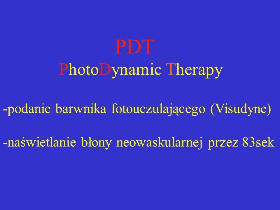 PDT PhotoDynamic Therapy -podanie barwnika fotouczulającego (Visudyne) -naświetlanie błony neowaskularnej przez 83sek