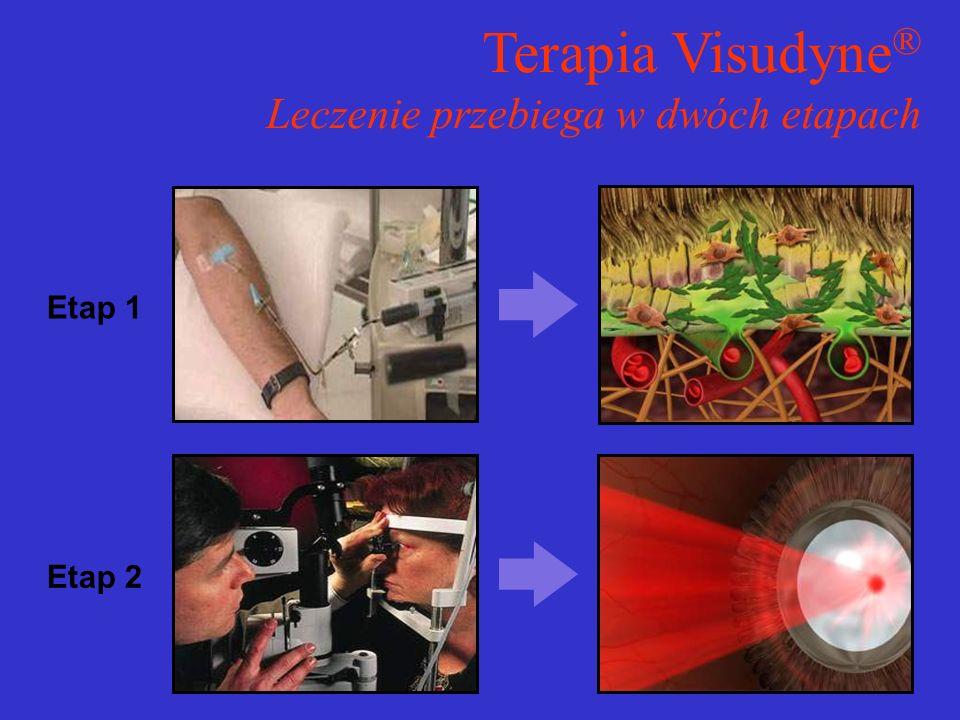 Etap 1 Etap 2 Terapia Visudyne ® Leczenie przebiega w dwóch etapach