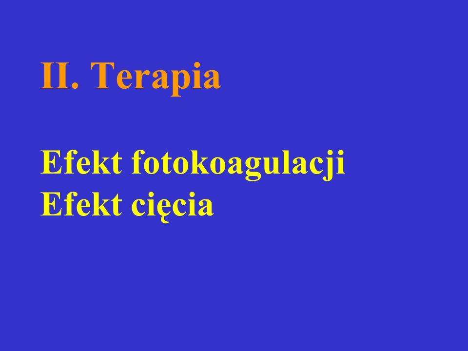 II. Terapia Efekt fotokoagulacji Efekt cięcia