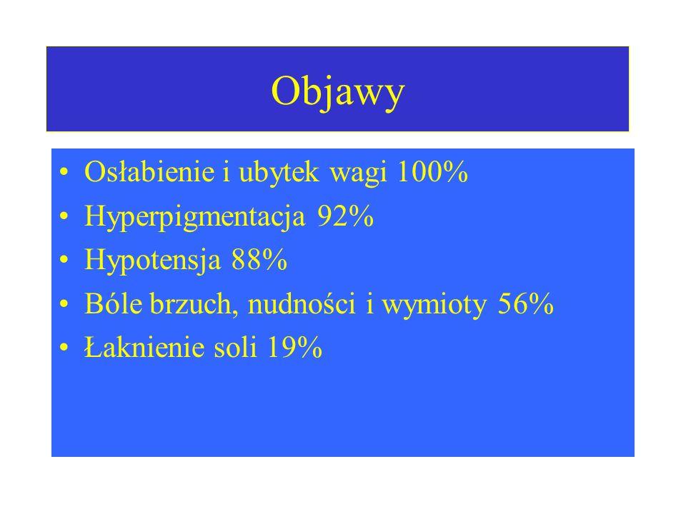 Objawy Osłabienie i ubytek wagi 100% Hyperpigmentacja 92% Hypotensja 88% Bóle brzuch, nudności i wymioty 56% Łaknienie soli 19%