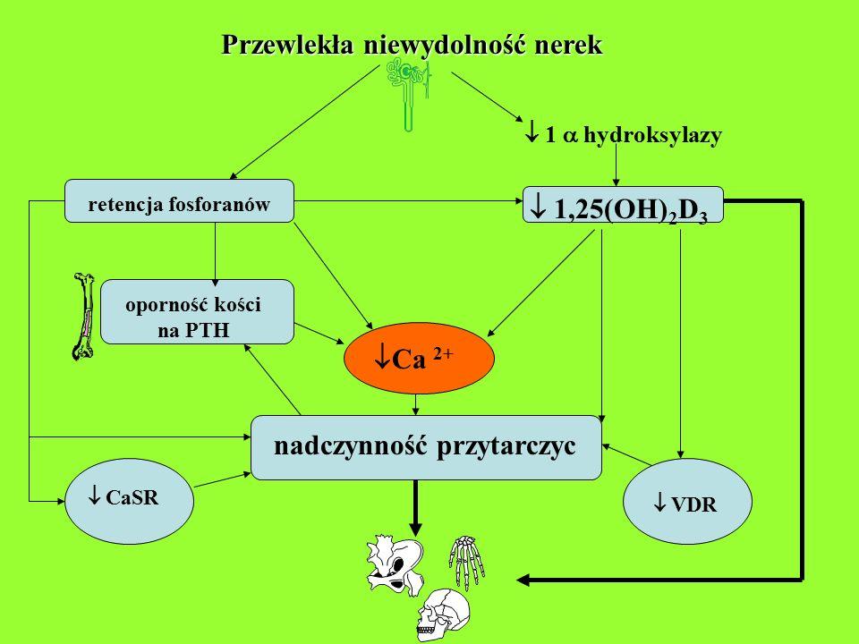 Przewlekła niewydolność nerek  1  hydroksylazy  1,25(OH) 2 D 3 retencja fosforanów oporność kości na PTH  Ca 2+ nadczynność przytarczyc  VDR  Ca
