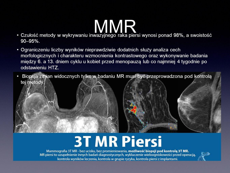 MMR Czułość metody w wykrywaniu inwazyjnego raka piersi wynosi ponad 98%, a swoistość 90–95%.