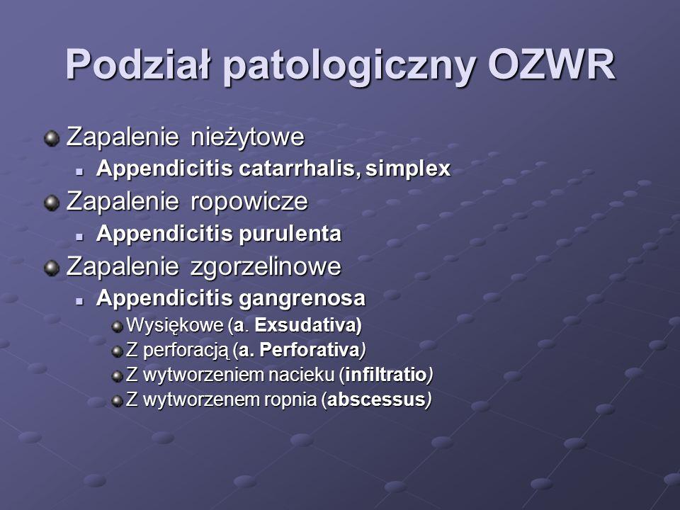Podział patologiczny OZWR Zapalenie nieżytowe Appendicitis catarrhalis, simplex Appendicitis catarrhalis, simplex Zapalenie ropowicze Appendicitis pur