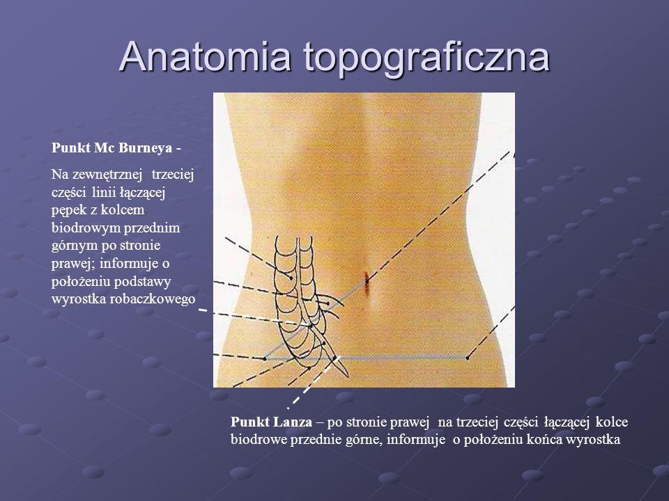 Appendektomia