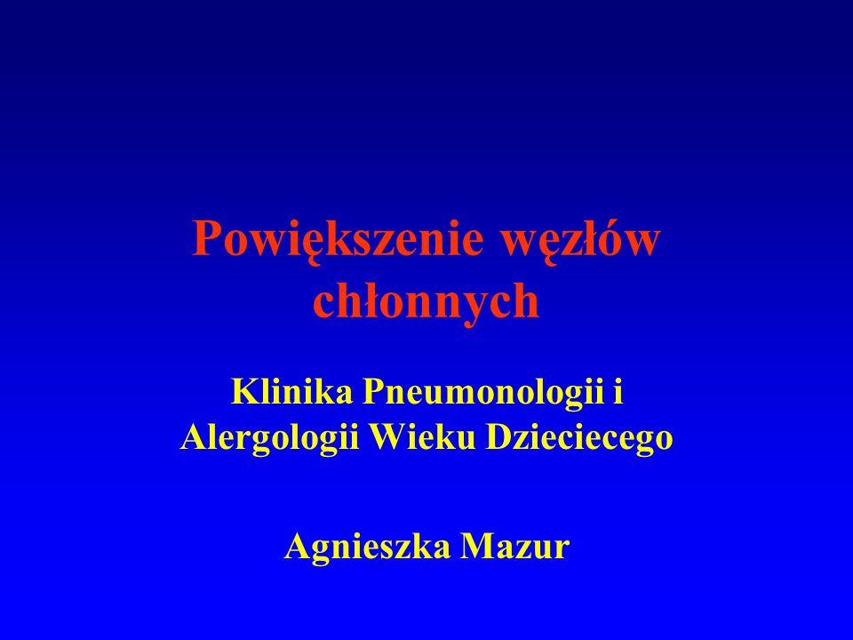 Powiększenie węzłów chłonnych Klinika Pneumonologii i Alergologii Wieku Dzieciecego Agnieszka Mazur