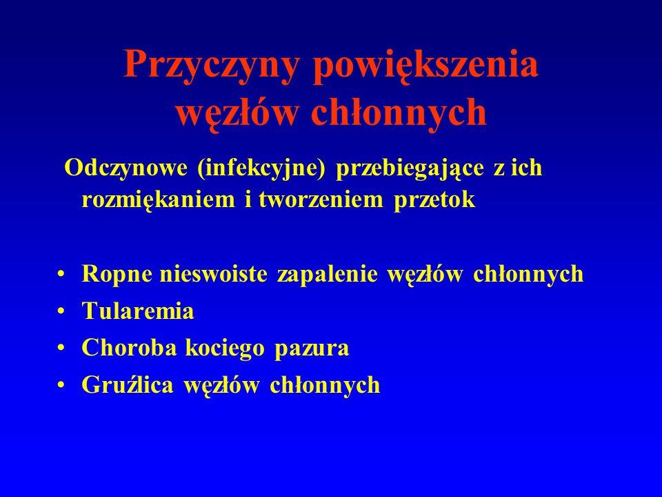 Przyczyny powiększenia węzłów chłonnych Odczynowe (infekcyjne) przebiegające z ich rozmiękaniem i tworzeniem przetok Ropne nieswoiste zapalenie węzłów chłonnych Tularemia Choroba kociego pazura Gruźlica węzłów chłonnych