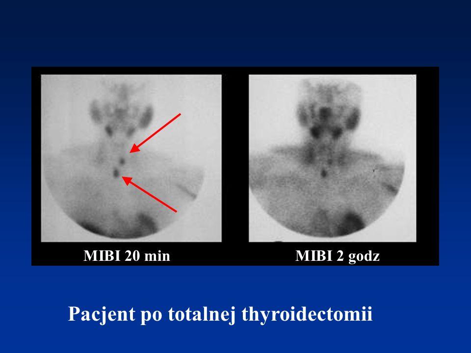 Pacjent po totalnej thyroidectomii MIBI 20 minMIBI 2 godz