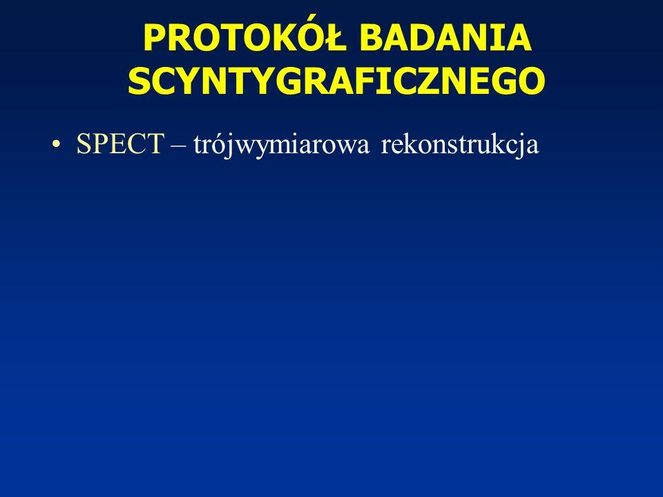 PROTOKÓŁ BADANIA SCYNTYGRAFICZNEGO SPECT – trójwymiarowa rekonstrukcja