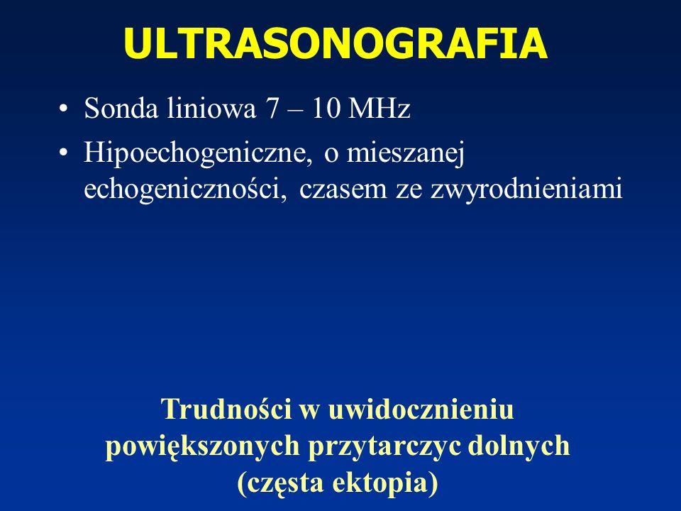 ULTRASONOGRAFIA Sonda liniowa 7 – 10 MHz Hipoechogeniczne, o mieszanej echogeniczności, czasem ze zwyrodnieniami Trudności w uwidocznieniu powiększony