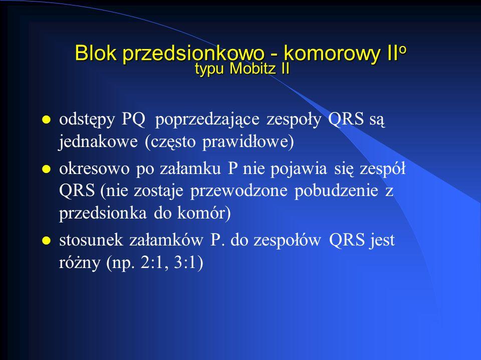 Blok przedsionkowo - komorowy II o typu Mobitz II l odstępy PQ poprzedzające zespoły QRS są jednakowe (często prawidłowe) l okresowo po załamku P nie