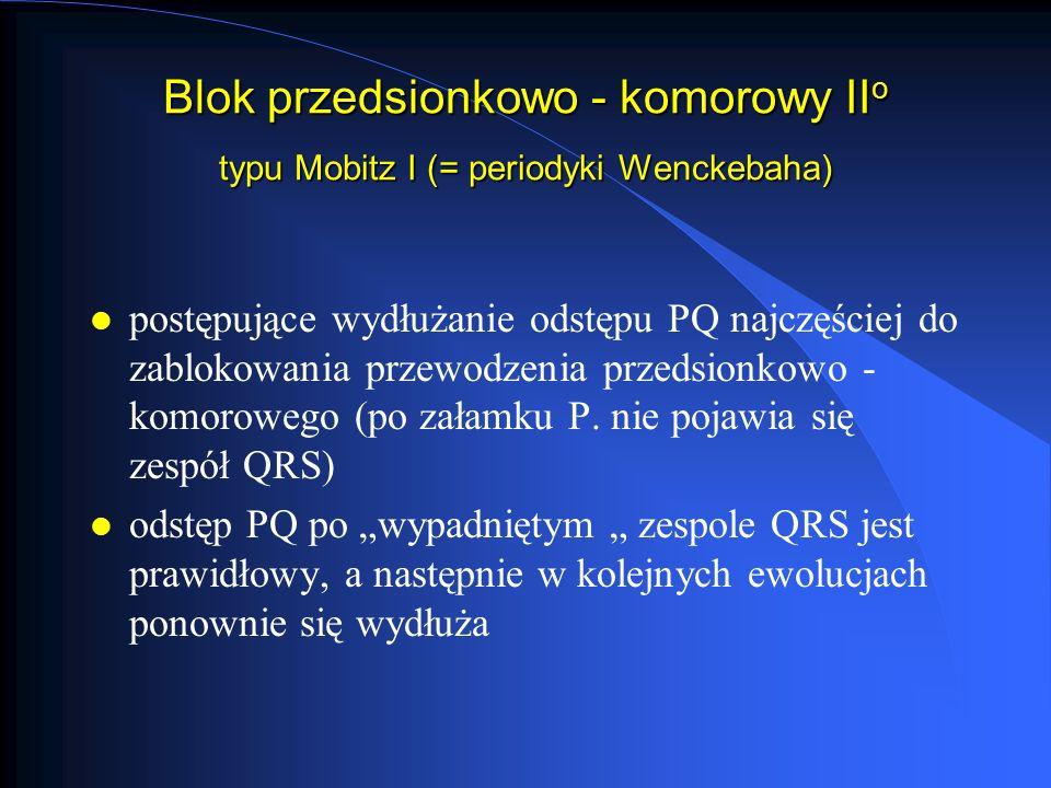 Blok przedsionkowo - komorowy II o typu Mobitz II l odstępy PQ poprzedzające zespoły QRS są jednakowe (często prawidłowe) l okresowo po załamku P nie pojawia się zespół QRS (nie zostaje przewodzone pobudzenie z przedsionka do komór) l stosunek załamków P.