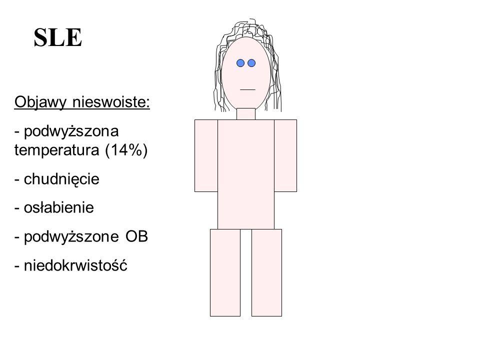 Objawy nieswoiste: - podwyższona temperatura (14%) - chudnięcie - osłabienie - podwyższone OB - niedokrwistość SLE