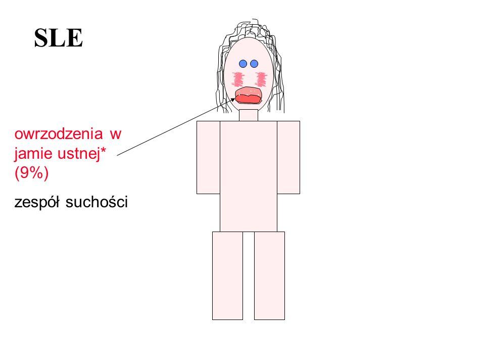 SLE owrzodzenia w jamie ustnej* (9%) zespół suchości