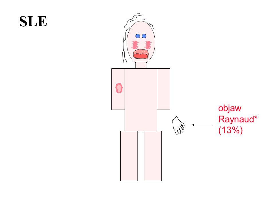 SLE objaw Raynaud* (13%)