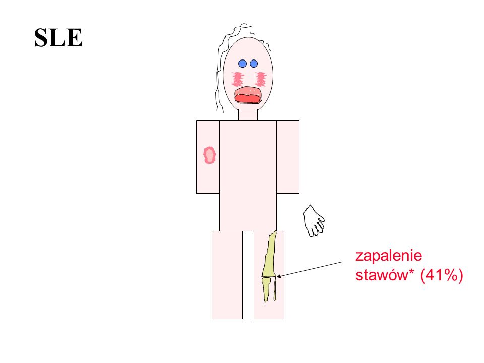 SLE zapalenie stawów* (41%)