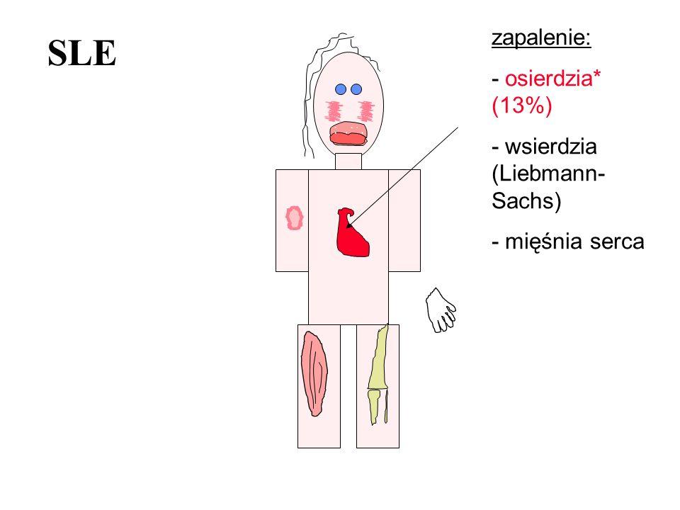 SLE zapalenie: - osierdzia* (13%) - wsierdzia (Liebmann- Sachs) - mięśnia serca