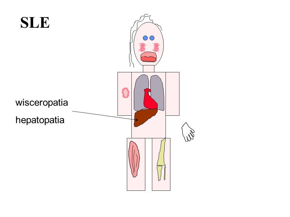 SLE wisceropatia hepatopatia