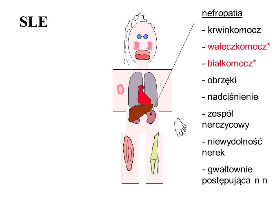 SLE nefropatia - krwinkomocz - wałeczkomocz* - białkomocz* - obrzęki - nadciśnienie - zespół nerczycowy - niewydolność nerek - gwałtownie postępująca