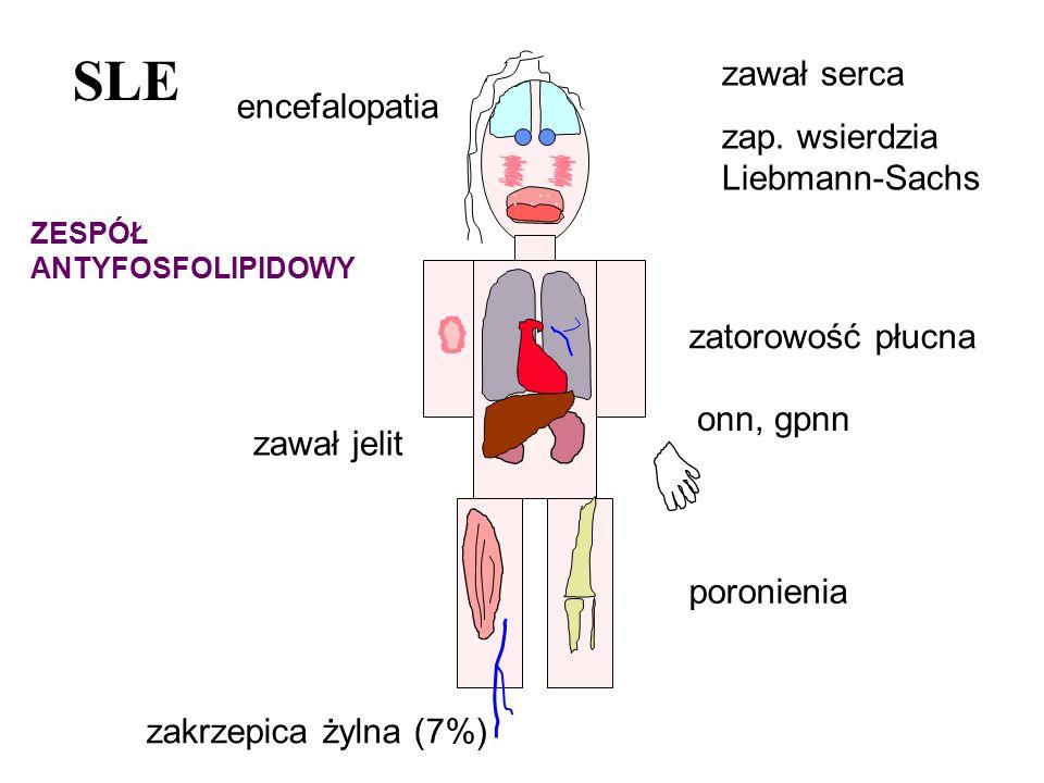 SLE zakrzepica żylna (7%) ZESPÓŁ ANTYFOSFOLIPIDOWY zawał serca zap. wsierdzia Liebmann-Sachs zawał jelit zatorowość płucna poronienia onn, gpnn encefa