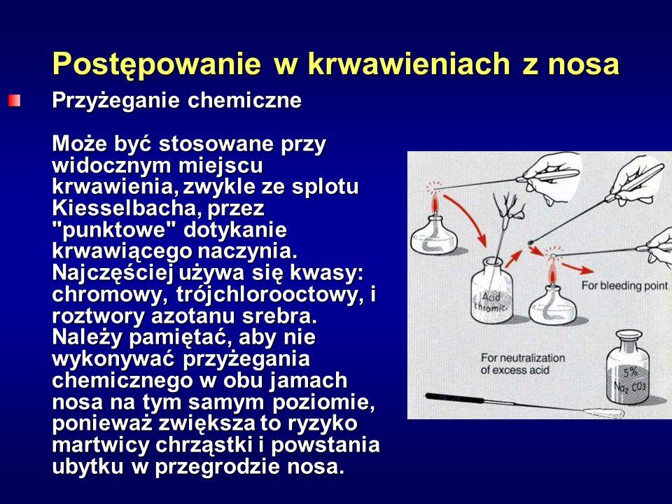 Postępowanie w krwawieniach z nosa Przyżeganie chemiczne Może być stosowane przy widocznym miejscu krwawienia, zwykle ze splotu Kiesselbacha, przez