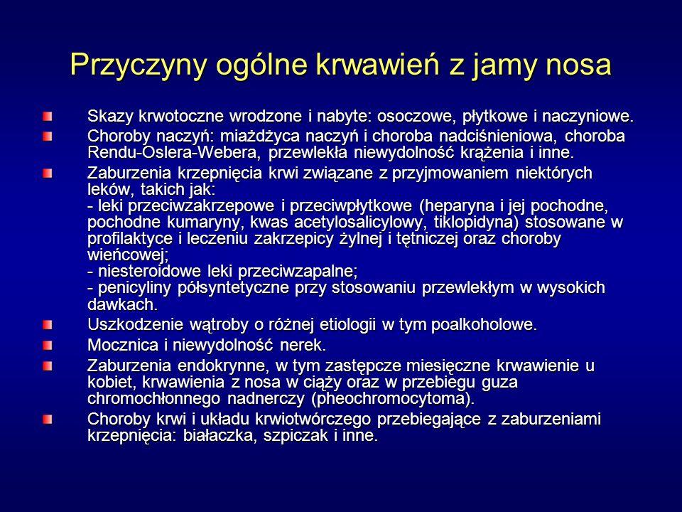Przyczyny ogólne krwawień z jamy nosa Skazy krwotoczne wrodzone i nabyte: osoczowe, płytkowe i naczyniowe. Choroby naczyń: miażdżyca naczyń i choroba