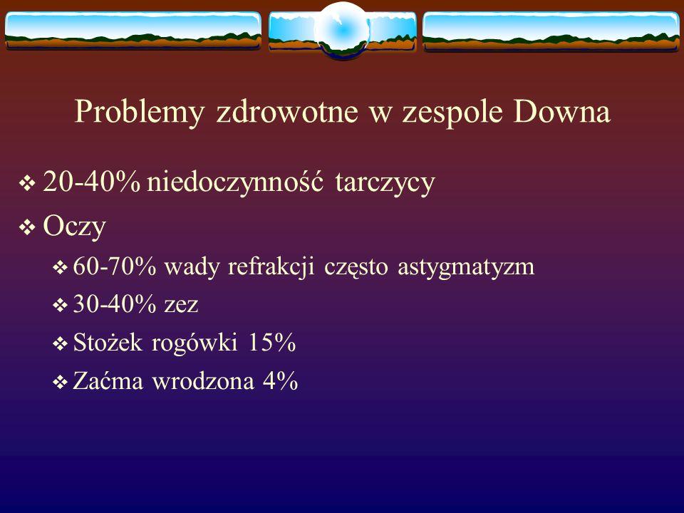 Problemy zdrowotne w zespole Downa  20-40% niedoczynność tarczycy  Oczy  60-70% wady refrakcji często astygmatyzm  30-40% zez  Stożek rogówki 15%