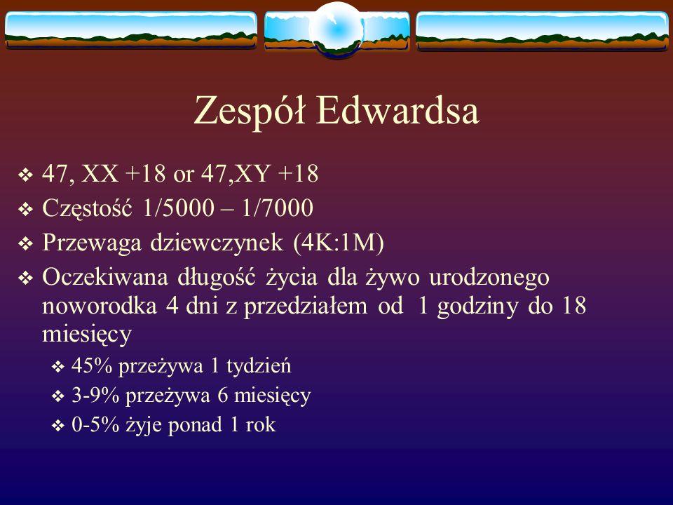 Zespół Edwardsa  47, XX +18 or 47,XY +18  Częstość 1/5000 – 1/7000  Przewaga dziewczynek (4K:1M)  Oczekiwana długość życia dla żywo urodzonego now