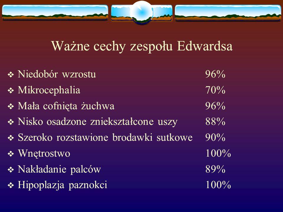 Ważne cechy zespołu Edwardsa  Niedobór wzrostu96%  Mikrocephalia70%  Mała cofnięta żuchwa96%  Nisko osadzone zniekształcone uszy88%  Szeroko rozs
