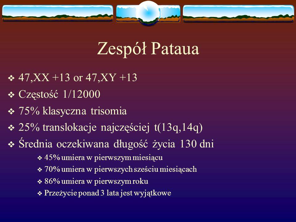 Zespół Pataua  47,XX +13 or 47,XY +13  Częstość 1/12000  75% klasyczna trisomia  25% translokacje najczęściej t(13q,14q)  Średnia oczekiwana dług