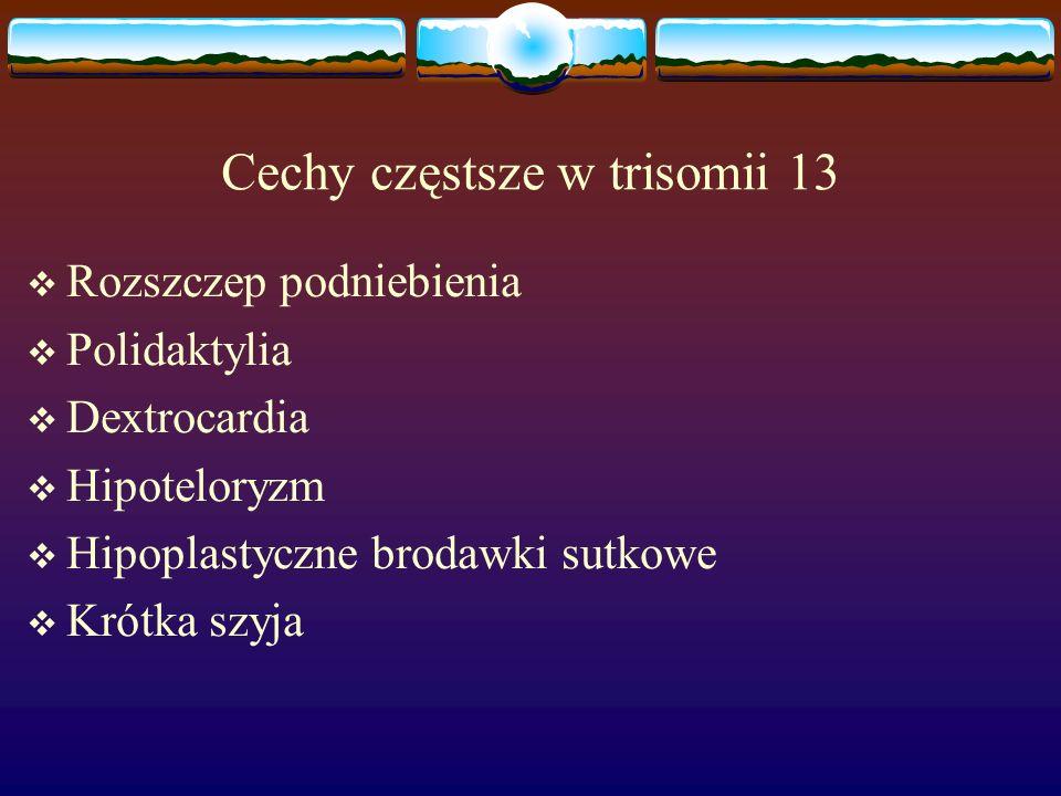 Cechy częstsze w trisomii 13  Rozszczep podniebienia  Polidaktylia  Dextrocardia  Hipoteloryzm  Hipoplastyczne brodawki sutkowe  Krótka szyja
