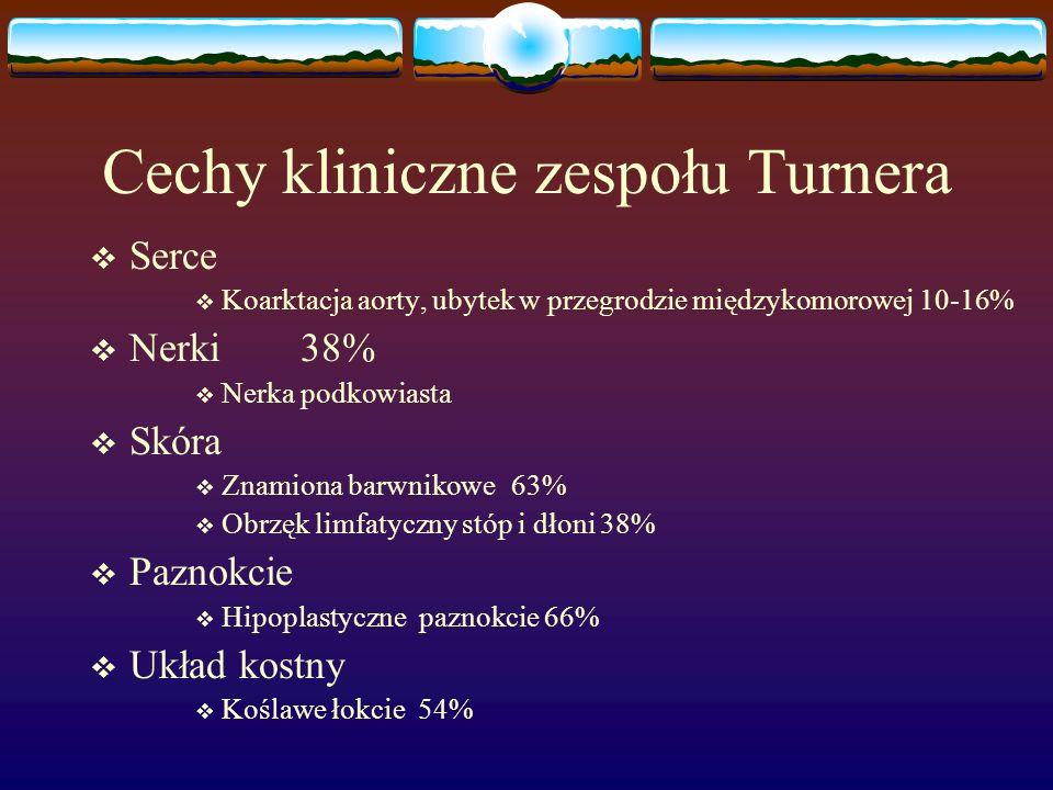 Cechy kliniczne zespołu Turnera  Serce  Koarktacja aorty, ubytek w przegrodzie międzykomorowej 10-16%  Nerki 38%  Nerka podkowiasta  Skóra  Znam