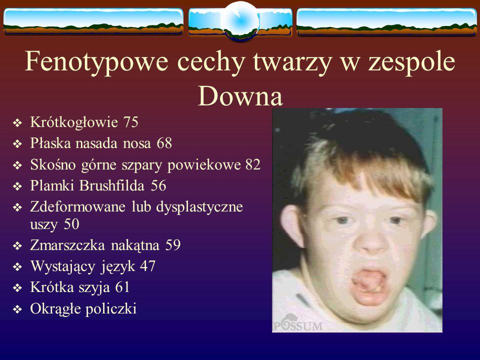 Fenotypowe cechy twarzy w zespole Downa  Krótkogłowie 75  Płaska nasada nosa 68  Skośno górne szpary powiekowe 82  Plamki Brushfilda 56  Zdeformo