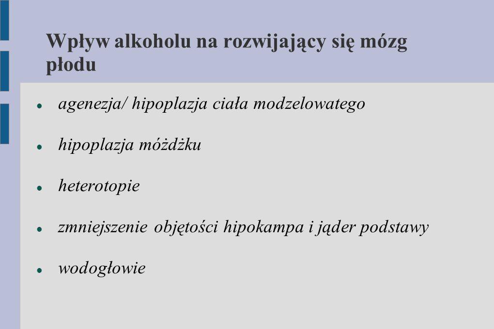 Wpływ alkoholu na rozwijający się mózg płodu agenezja/ hipoplazja ciała modzelowatego hipoplazja móżdżku heterotopie zmniejszenie objętości hipokampa