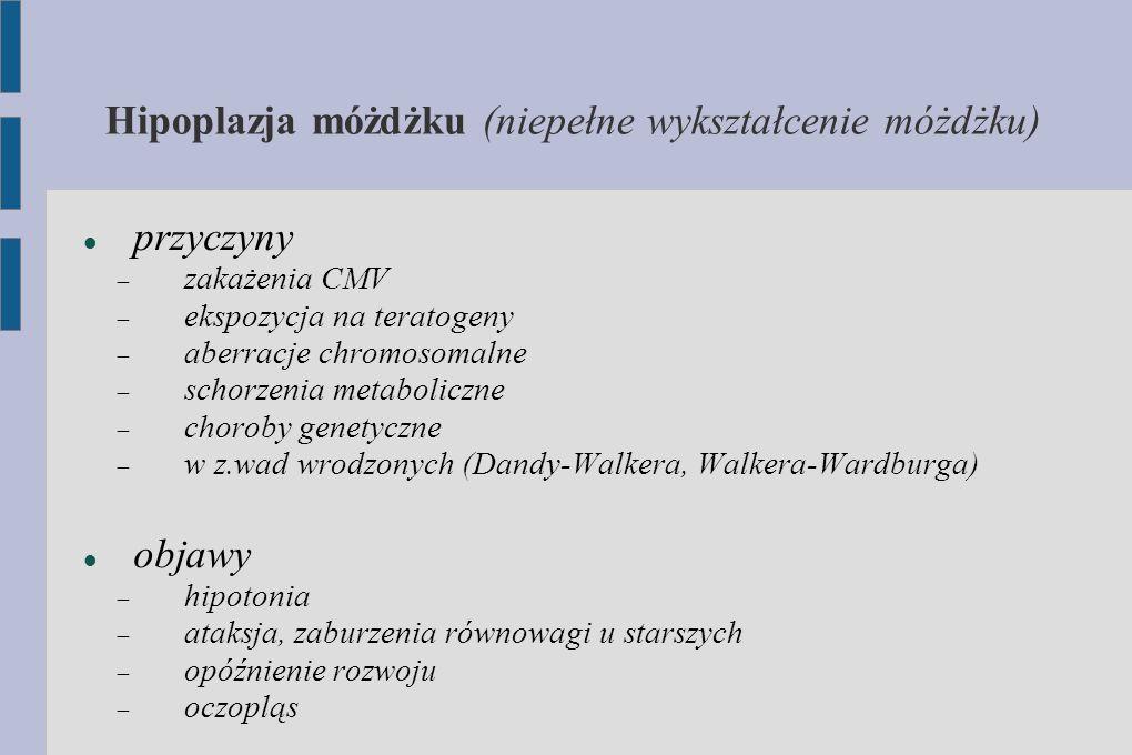 Hipoplazja móżdżku (niepełne wykształcenie móżdżku) przyczyny  zakażenia CMV  ekspozycja na teratogeny  aberracje chromosomalne  schorzenia metabo