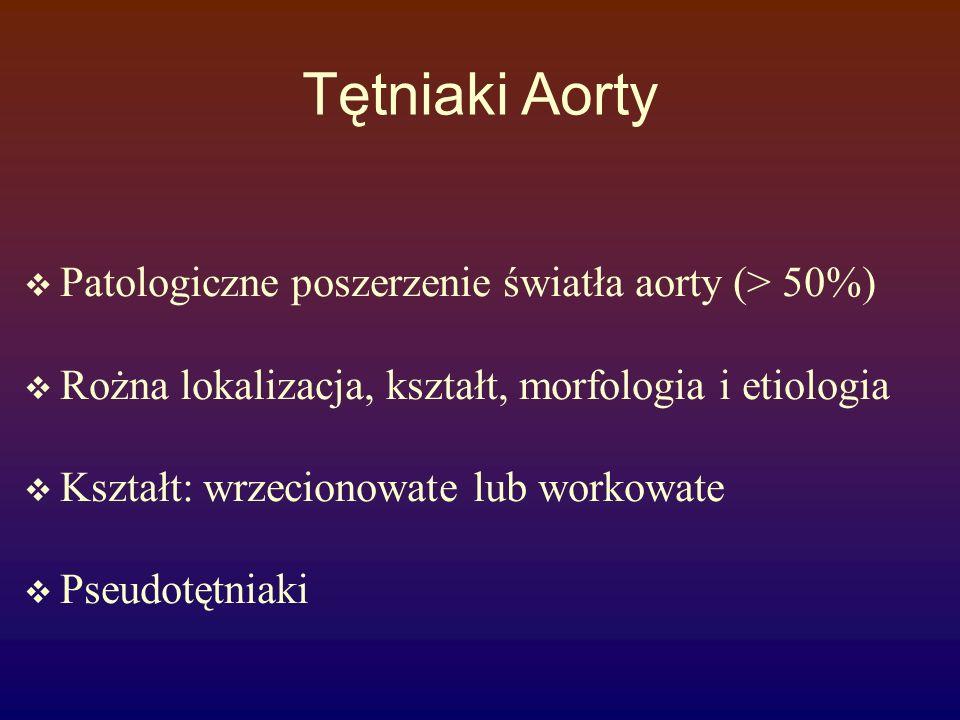 Tętniak aorty piersiowej Występowanie: aorta zstępująca > wstępująca > łuk Etiologia & patogeneza: zwyrodnienie błony środkowej (martwica aorty wstępujacej zespół Marfana, Zespól Ehlers-Danlosa miażdżyca aorty wstępującej kiła aorty wstępującej ( 10-25 lat po zakażeniu) inne zapalenia aorty uraz