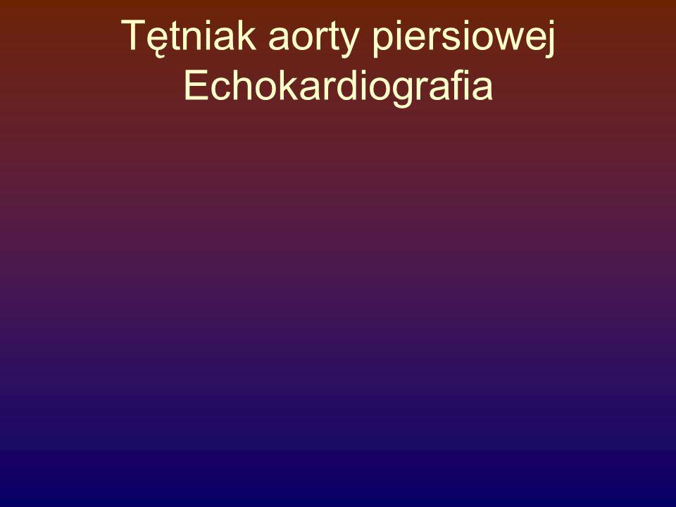 Tętniak aorty piersiowej Echokardiografia