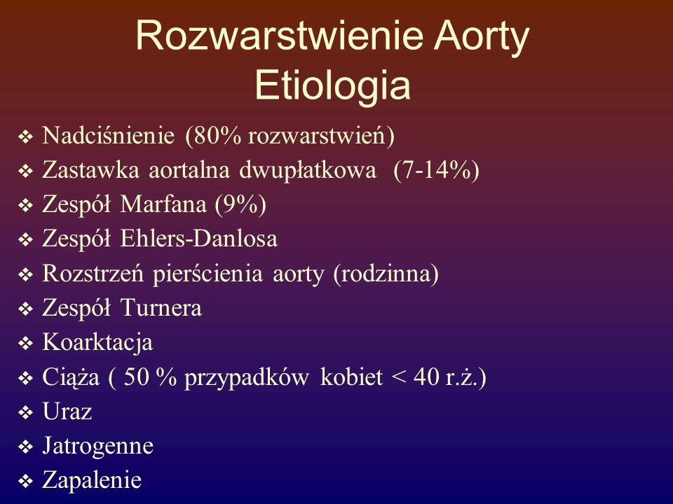 Rozwarstwienie Aorty Etiologia  Nadciśnienie (80% rozwarstwień)  Zastawka aortalna dwupłatkowa (7-14%)  Zespół Marfana (9%)  Zespół Ehlers-Danlosa