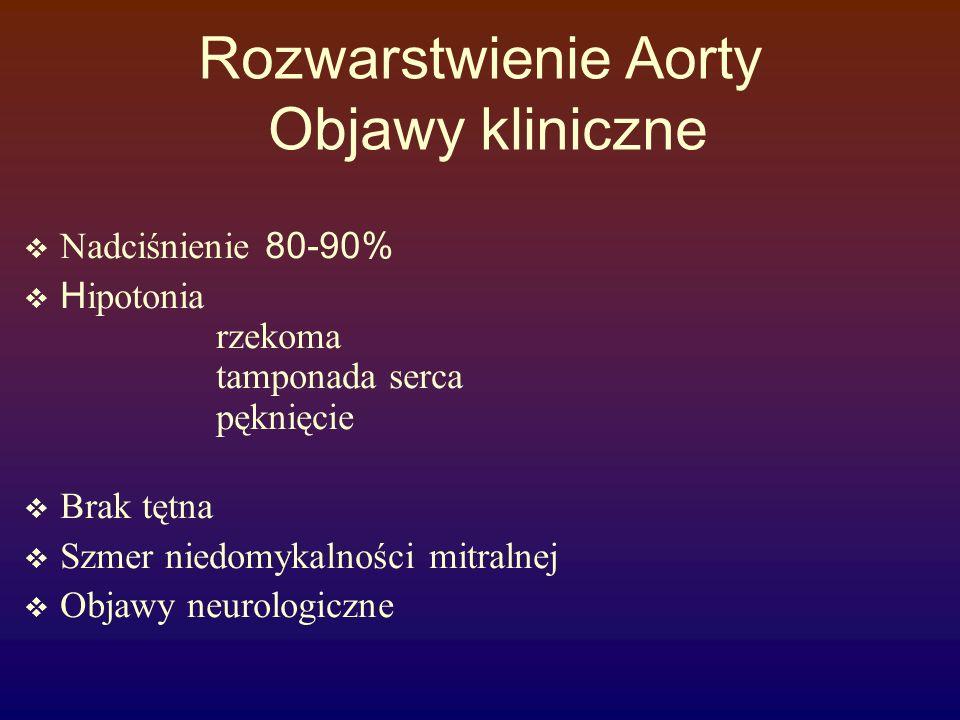Rozwarstwienie Aorty Objawy kliniczne  Nadciśnienie 80-90%  H ipotonia rzekoma tamponada serca pęknięcie  Brak tętna  Szmer niedomykalności mitral