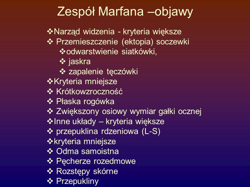 Zespół Marfana –objawy  Narząd widzenia - kryteria większe  Przemieszczenie (ektopia) soczewki  odwarstwienie siatkówki,  jaskra  zapalenie tęczó