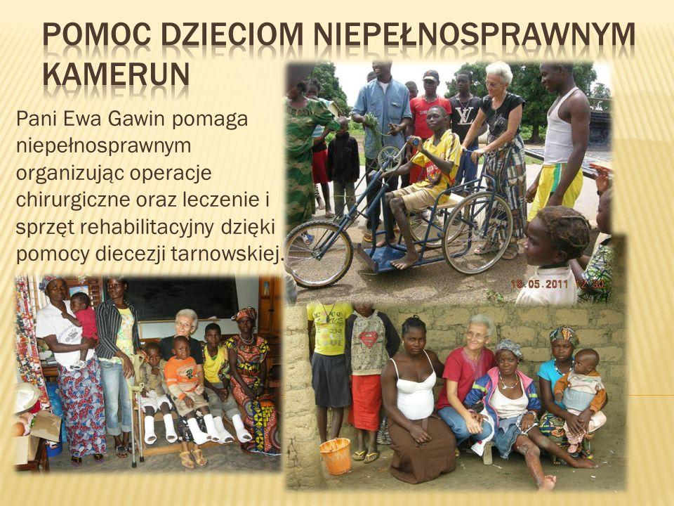Pani Ewa Gawin pomaga niepełnosprawnym organizując operacje chirurgiczne oraz leczenie i sprzęt rehabilitacyjny dzięki pomocy diecezji tarnowskiej.