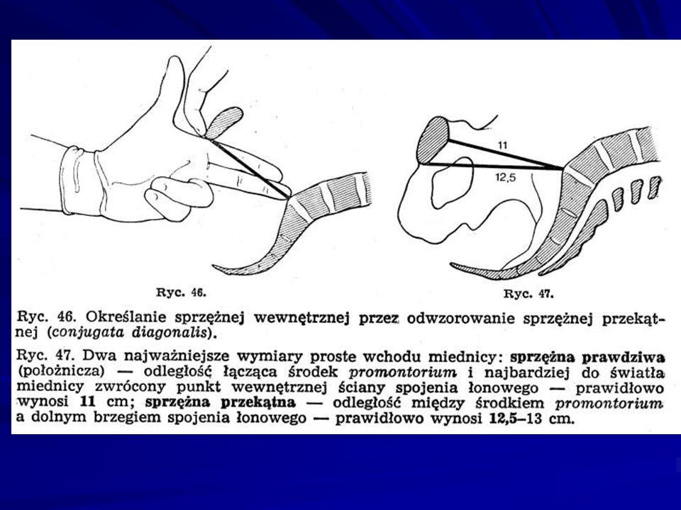IV ZWROT - ZEWNĘTRZNY Twarzyczka płodu zwraca się w stronę prawego lub lewego uda matki.