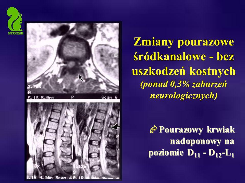  Pourazowy krwiak nadoponowy na poziomie D 11 - D 12 -L 1 Zmiany pourazowe śródkanałowe - bez uszkodzeń kostnych (ponad 0,3% zaburzeń neurologicznych)